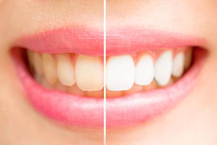 Zahnaufhellung. Der direkte Vergleich.