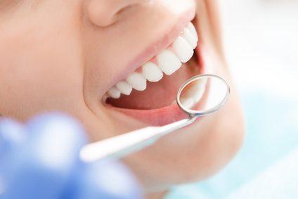 Schöne Zähne, Zahnaufhellung, Kunststofffüllungen, Bondings.